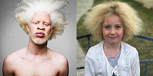 Çarpıcı ve Benzersiz Görünüşlere Sahip Oldukları İçin Ünlü Olan 15 Etkileyici İnsan