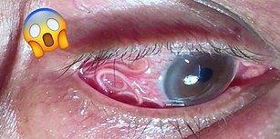 Gittiği Doktorda Gözünde 15 Santimetrelik Bir Solucan Olduğunu Öğrenen Adam