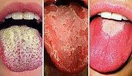 Dilinizin Rengi Sağlığınız ile İlgili Ne Gibi İşaretler Veriyor?