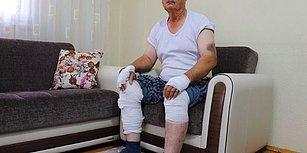 Sokak Ortasında Vahşet! Demir Sopayla Öldüresiye Dövdü, Serbest Kaldı