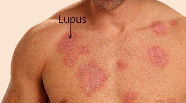 Sistemik Lupus Eritematozus (SLE) (Systemical Lupus Erythematosus) ya da Yaygın Lupus Kızarıklığı, Sistemik Lupus Eritematozus tabipler arasında Lupus olarak da tanımlanmaktadır.