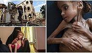 """""""Çocuklara Kıymayın Efendiler"""": 7 Yaşındaki Çocuğun Açlıktan Ölmesi Yemen'de Yaşanan İnsanlık Dramına Işık Tuttu!"""
