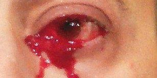 Resmen Kan Ağladı! Kabus Gibi Bir Saat Geçiren Adamın Gözünde Tümör Olduğu Tespit Edildi