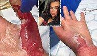 Mum Işığının Yanında Aseton Kullanan Genç Kadının Ellerinde Üçüncü Dereceden Yanıklar Oluştu!
