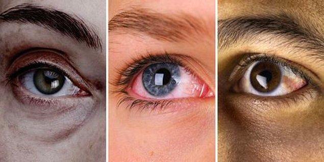10. Göz problemleri ve görüşte değişiklikler