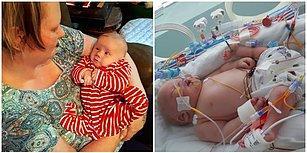 """""""Hasta Olabilir Ama Onu Seviyoruz"""": Bebeğinin Engelli Doğacağı Söylenen Anne Çocuğundan Vazgeçmedi!"""