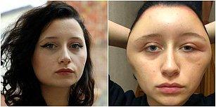 Yüzü Şişti, Nefes Dahi Alamadı: Saçını Boyamak İsterken Ölümle Burun Buruna Geldi