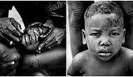 Güzellik İçin Yüzlerini Keserek Kabile Nişanı İşliyorlar: Afrika Kabilelerin 'Vahşi' Olarak Değerlendirilen Kültürü!