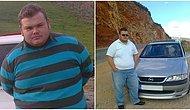 Sadece Kilolarından Kurtulmak İstemişti: Mide Küçültme Ameliyatından 1 Ay Sonra Hayatını Kaybetti