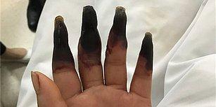 Evi İşi Yaptıktan Sonra Parmaklarının Kömür Gibi Kararmasıyla Şok Yaşayan Kadın