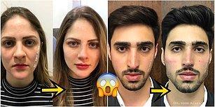 Doktor Bu Ne? Öncesi ve Sonrası Fotoğraflarıyla Sizde Soğuk Duş Almış Etkisi Yaratacak 20 Estetik Mucizesi