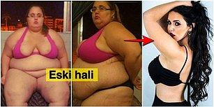 Mucizelere İnanın! Obeziteden Ölmek Üzereyken Kendini Baştan Yaratan Kadının İnanılmaz Değişimi