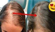 Saç Dökülmesini Engellemek İçin Uygulayabileceğiniz 14 Çözüm Önerisi