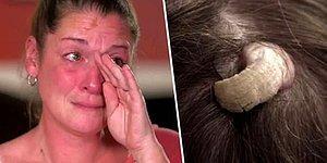 Tıp Dünyası Şoka Uğradı! Kafasının Arkasında Boynuz Çıkan Kadın