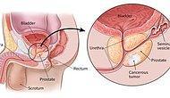 Erkeklerde Çok Sık Görülen Prostat Kanseri Hakkında Bilmeniz Gerekenler