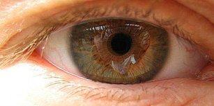 Aman Dikkat! Sıkça Rastlanan Göz Rahatsızlığı Makula Dejenerasyonu Hakkında Mutlaka Bilmeniz Gerekenler