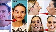 Mucizelere İnanın! Sadece Ağız ve Diş Tedavisi Sayesinde Bambaşka Birine Dönen İnsanların İnanılmaz Değişimi