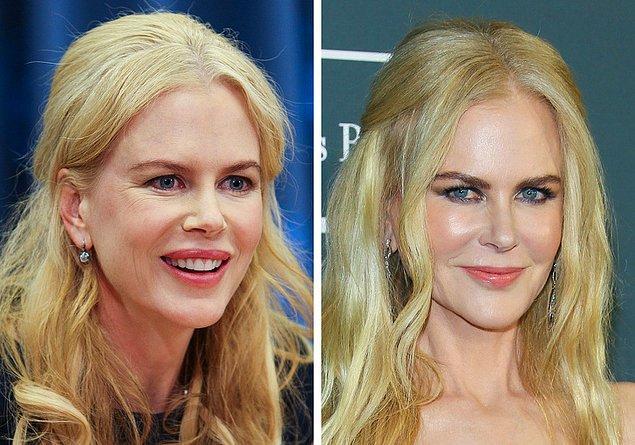 17. Nicole Kidman