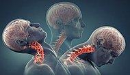 Baş Döndürücü Etkisiyle Ömürden Ömür Çalan Boyun Düzleşmesinin Belirtileri ve Tedavi Yöntemleri