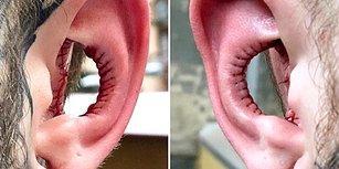 Yeni Vücut Trendi! Kulak Kepçesi Çukurunu Aldırmak İçin Binlerce Kilometre Yol Kateden Adam