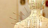 Sigara Bırakmada, Ağrıları Azaltmada ve Kilo Vermede Etkili Geleneksel Bir Tıp Uygulaması: Akupunktur