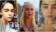 'Khaleesi Rolünden Dolayı Ölümü Sorgulayacak Vaktim Yoktu!' Emilia Clarke'ın Beyin Anevrizması Geçirdikten Sonra Paylaştığı Fotoğrafları