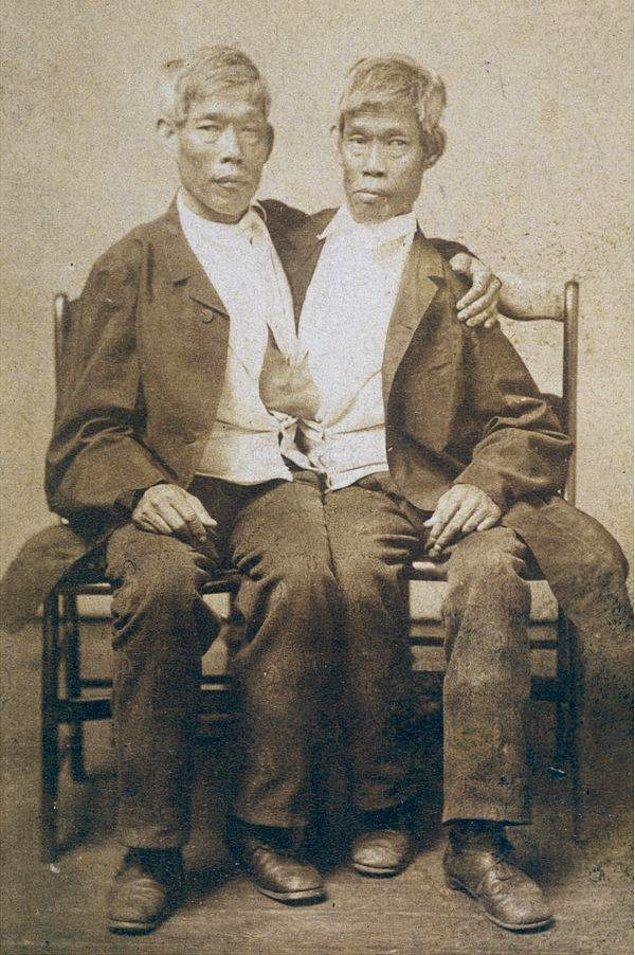 """1811 - """"Siyam ikizleri"""" diye anılacak olan Chang Bunker ve Eng Bunker kardeşler doğdu."""