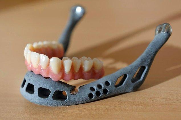 Dişler ve çene implantları insanların tamamen yeni bir görünüm kazanmalarına yardımcı olacak.
