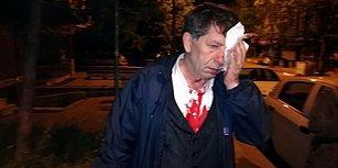 Gazeteci Yavuz Selim Demirağ Saldırıya Uğradı