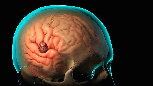12. Beyinde oluşan hasarlar, tümör ve anevrizmaları tehlike olmaktan çıkaracak 'kraniyotomi' tedavisi beynin ulaşılamayan kısımlarını ulaşılır kılıyor.