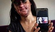 Berfin Özek'in Yüzüne Asit Atan Saldırgan, Kasten Öldürmeye Teşebbüsten Yargılanacak