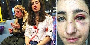 Londra'da Bir Otobüste Dört Magandanın Tacizine ve Saldırısına Maruz Kalarak Darp Edilen Lezbiyen Çift