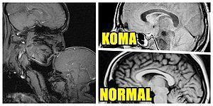 Vücudunuz Hakkında Anatomi Kitaplarındakilerden Çok Daha Fazlasını Öğreneceğiniz 17 Röntgen Filmi