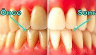 Sağlıklı Dişler ve Çok Daha Güzel Bir Gülüş İçin Hemen Uygulamaya Başlamanız Gereken 11 Alışkanlık