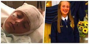 Kafasına Aldığı Darbeden Sonra İki Saatte Bir Hafızasını Kaybeden 16 Yaşındaki Genç Kız