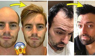 Kelin Merhemi Varmış! Yaptırdıkları Saç Protezinden Sonra Adeta Birer Best Model'e Dönüşen 34 Erkek