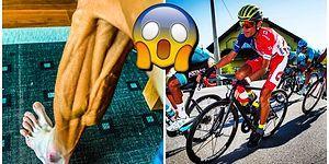 Blumia Hastası Dünya Şampiyonu Bisikletçinin Yarış Sonrası Fotoğrafları Sevenlerini Dehşete Düşürdü