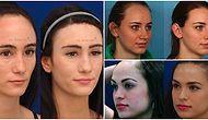 Geniş Alın Artık Kader Değil: Yüzü Tamamen Değiştiren ve Giderek Popülerleşen Alın Daraltma Operasyonu