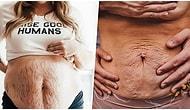 Hamilelikte Vücutlarında Oluşan Çatlaklar ile Poz Veren Kadınları Görünce Anne Olmadan Önce Bir Kez Daha Düşüneceksiniz!
