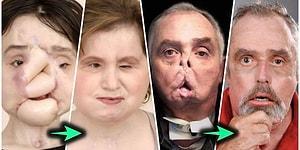 Yüz Nakli Ameliyatı Olmuş Hastaların Bir Mucizeyi Yaşadıklarını Kanıtlayan Öncesi ve Sonrası Fotoğrafları