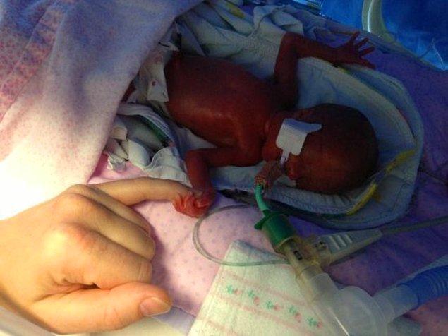 1. gün...Küçük bebek Edie düşünüldüğü tarihten çok çok önce dünyaya geldi ve sadece 570 gramdı...