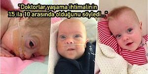Doğuma 16 Hafta Kala Doğan Prematüre Edie Bebeğin Mucizevi Bir Şekilde Hayata Sıkı Sıkıya Tutunma Hikayesi