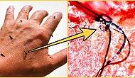 Deri Altında Böcek Geziyormuş Hissi Yaratan ve Tedavisi Bir Türlü Bulunamayan Gizemli Hastalık: Morgellon Sendromu
