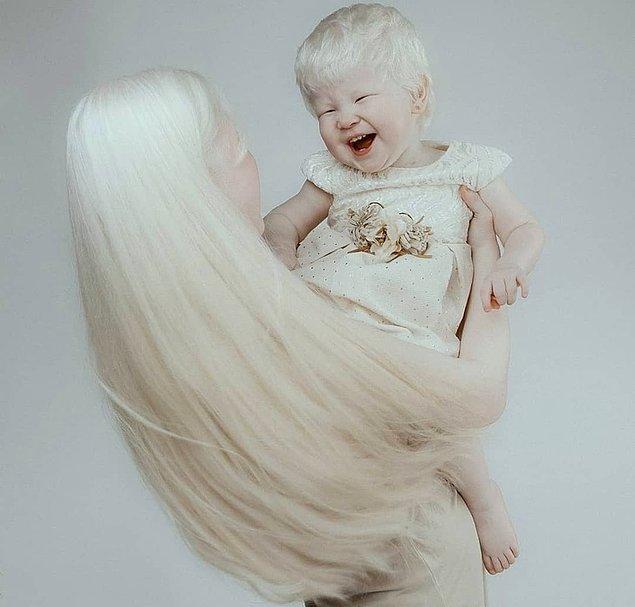 Aralarında tam 12 yaş var, fakat ikisi de albino olarak doğdular.