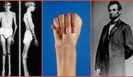 Eski ABD Başkanı Abraham Lincoln'ün de Muzdarip Olduğu Düşünülen Genetik Bir Rahatsızlık: Marfan Sendromu