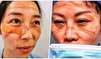 Koronavirüs'e Karşı Vuhan'da Gece Gündüz Demeden Çalışan Sağlık Personelinin Maske Takmaktan Bitap Düşen Yüzleri