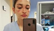 Haklarını Asla Ödeyemeyiz! Uzun Saatler Maskeyle Çalıştıktan Sonra Yüzlerinin Geldiği Hali Paylaşan 23 Sağlık Görevlisi