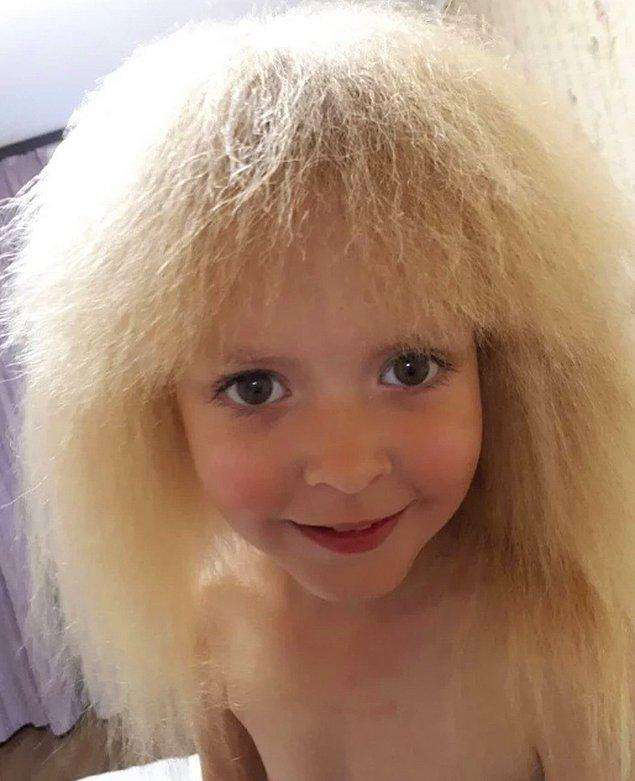 """13. """"Oldukça sıra dışı bir çocuğun babasıyım. Kızımda taranamayan saç sendromu var. İşte böyle görünüyor."""""""