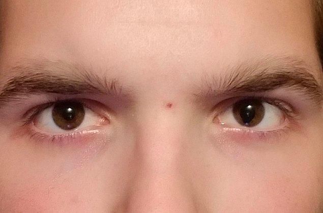 """9. """"Göz bebeğim, sanki iris aşağı doğru sallanıyormuş gibi duruyor."""""""