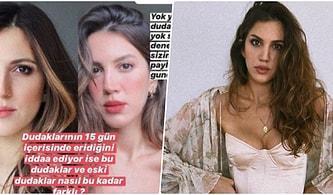 Dudağında Dolgu Olmadığını Söyleyen Arda Türkmen'in Sevgilisi Melodi Elbirliler'e Estetik Kliniğinden Yalanlama Geldi!
